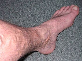 varicose veins Leg_Before_1