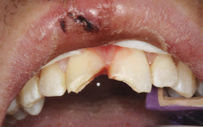 All you need to know about treating dental injuries in an Urgent Care setting